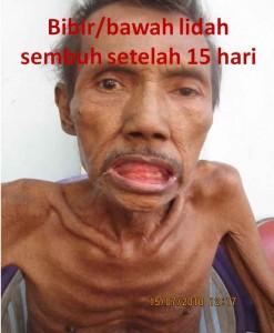 herpes-5