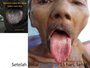 herpes-6