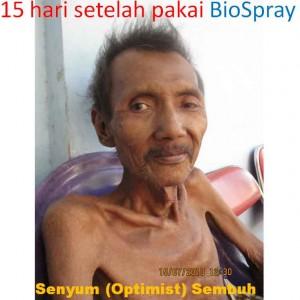 herpes-7